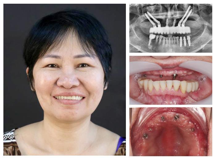 Trồng Răng Toàn Hàm Với Kỹ Thuật Implant All On 4 Và All On 6 - ảnh 9