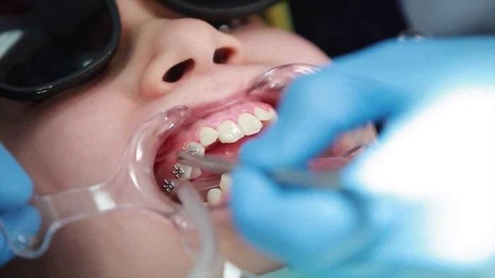 Nhổ Răng Bao Lâu Thì Gắn Niềng Răng? – Nha Khoa Quốc Tế Á Châu - ảnh 9
