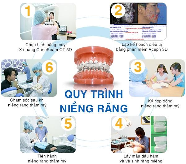 Niềng Răng Phải Nhổ Răng Số 4 Trong Trường Hợp Nào? – Nha Khoa Quốc Tế Á Châu - ảnh 9
