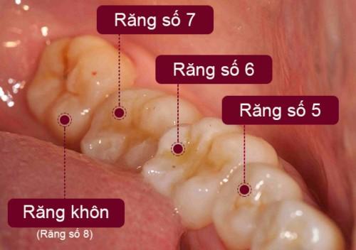 Con Người Có Mấy Chiếc Răng Khôn? – Nha Khoa Quốc Tế Á Châu - ảnh 8