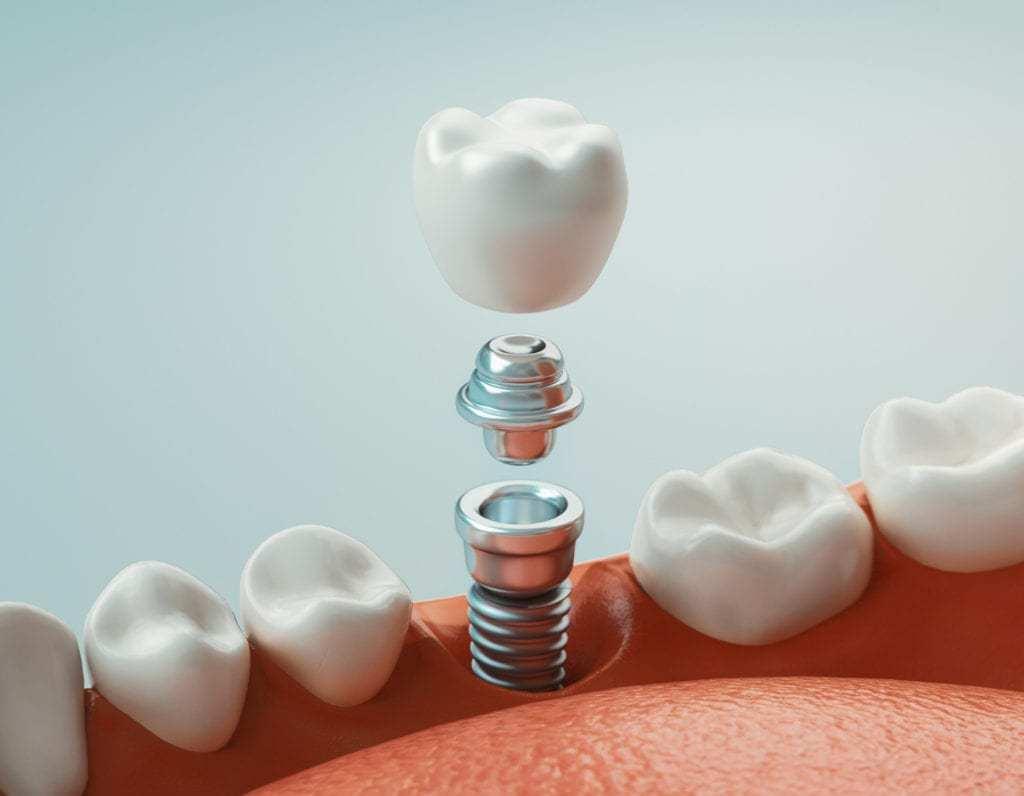 Các Bước Trồng Răng Implant Chuẩn? – Nha Khoa Quốc Tế Á Châu - ảnh 9