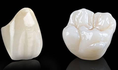 Bọc Răng Sứ Có Làm Răng Yếu Đi Không? – Nha Khoa Quốc Tế Á Châu - ảnh 9