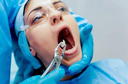 Nhổ Răng Có Nguy Hiểm Không? – Nha Khoa Quốc Tế Á Châu - ảnh 2