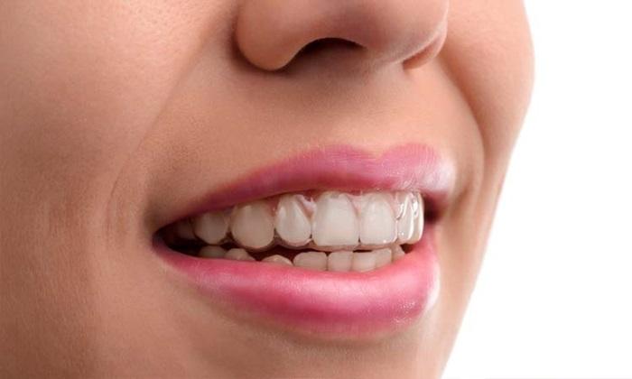 So Sánh Niềng Răng Trong Suốt Và Niềng Răng Mắc Cài - ảnh 3