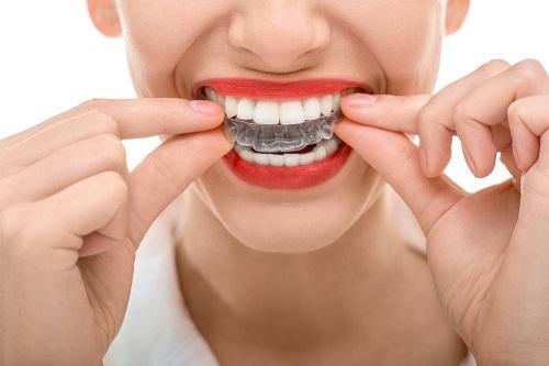 So Sánh Niềng Răng Trong Suốt Và Niềng Răng Mắc Cài - ảnh 4