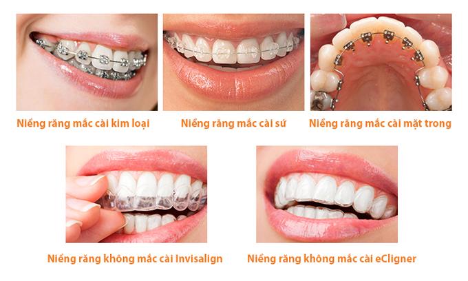 So Sánh Niềng Răng Trong Suốt Và Niềng Răng Mắc Cài - ảnh 6