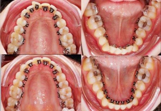 So Sánh Niềng Răng Trong Suốt Và Niềng Răng Mắc Cài - ảnh 7