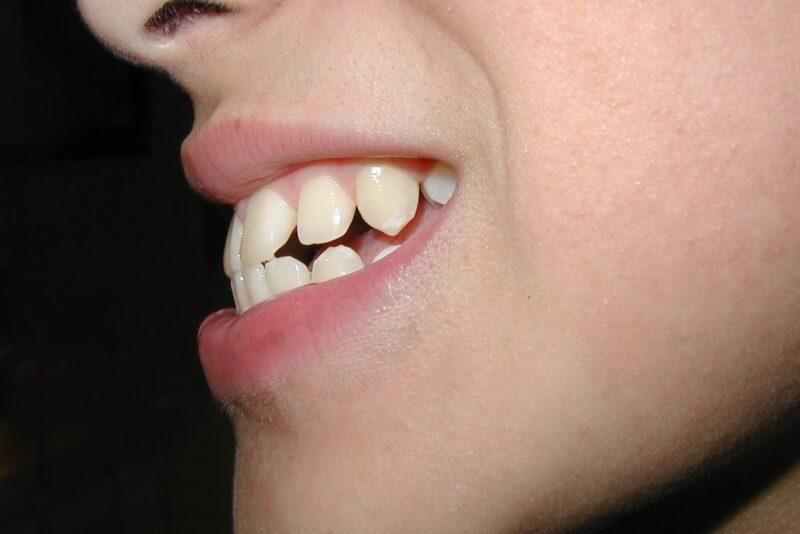 Chỉnh Răng Không Cần Niềng Được Không? – Nha Khoa Quốc Tế Á Châu - ảnh 1