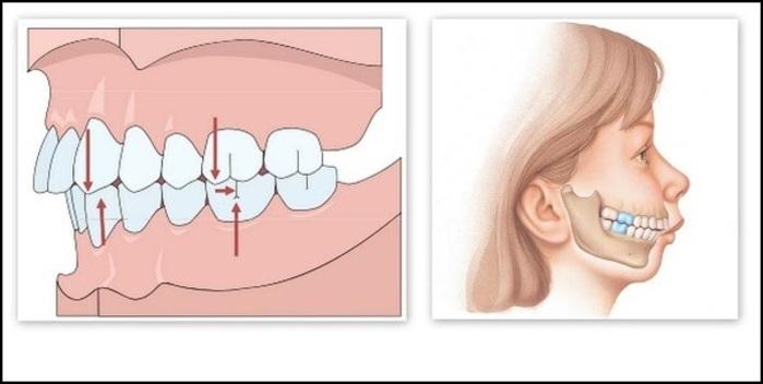 Chỉnh Răng Không Cần Niềng Được Không? – Nha Khoa Quốc Tế Á Châu - ảnh 2