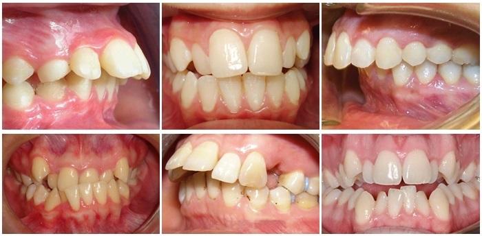 Chỉnh Răng Không Cần Niềng Được Không? – Nha Khoa Quốc Tế Á Châu - ảnh 3
