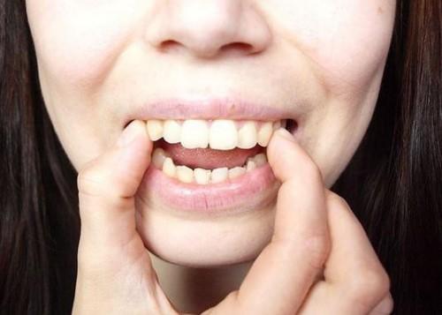 Chỉnh Răng Không Cần Niềng Được Không? – Nha Khoa Quốc Tế Á Châu - ảnh 4