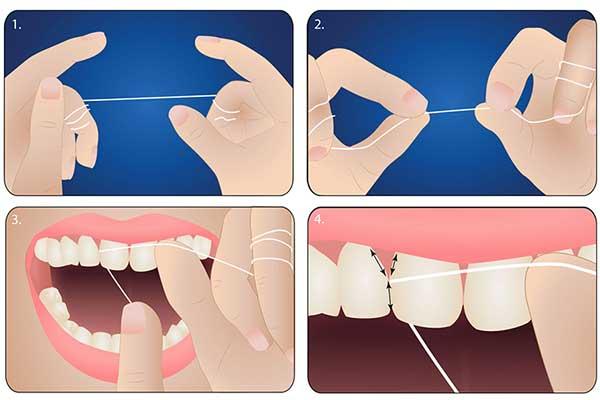 Chỉnh Răng Không Cần Niềng Được Không? – Nha Khoa Quốc Tế Á Châu - ảnh 5
