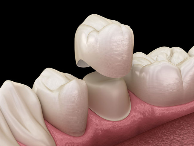 Chỉnh Răng Không Cần Niềng Được Không? – Nha Khoa Quốc Tế Á Châu - ảnh 6