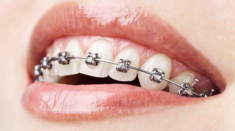 Niềng răng có được vĩnh viễn không? - ảnh 3