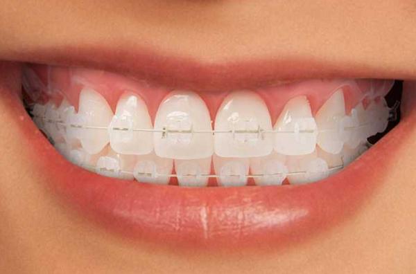 Niềng răng có được vĩnh viễn không? - ảnh 4