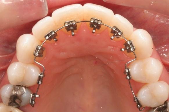 Niềng răng có được vĩnh viễn không? - ảnh 5