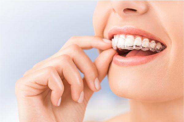 Niềng răng có được vĩnh viễn không? - ảnh 7