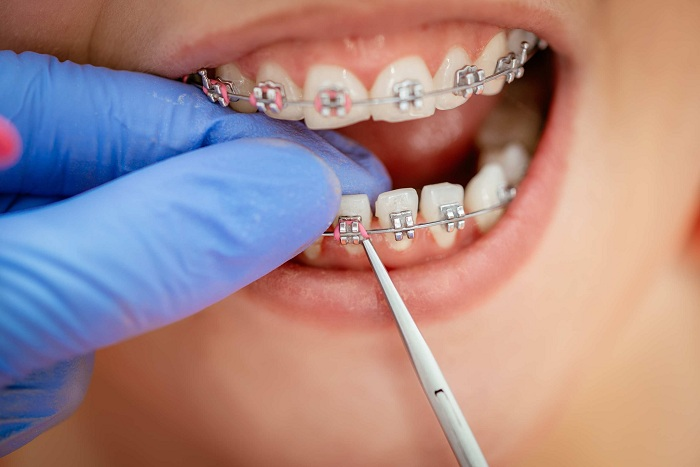 Niềng răng có được vĩnh viễn không? - ảnh 8