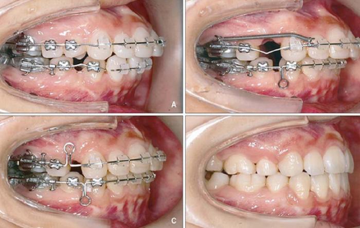 Niềng răng nhổ 4 hay 8 cái răng? – Nha Khoa Quốc Tế Á Châu - ảnh 3