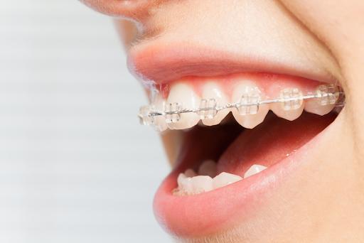 Niềng răng nhổ 4 hay 8 cái răng? – Nha Khoa Quốc Tế Á Châu - ảnh 4