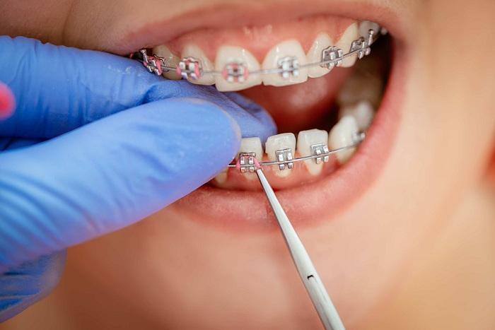 Niềng răng nhổ 4 hay 8 cái răng? – Nha Khoa Quốc Tế Á Châu - ảnh 6