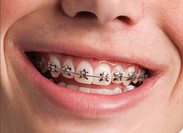Niềng Răng Hô Có Phải Nhổ Răng Không? – Nha Khoa Quốc Tế Á Châu - ảnh 1