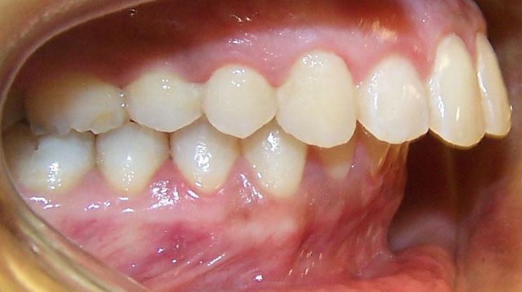 Niềng Răng Hô Có Phải Nhổ Răng Không? – Nha Khoa Quốc Tế Á Châu - ảnh 2