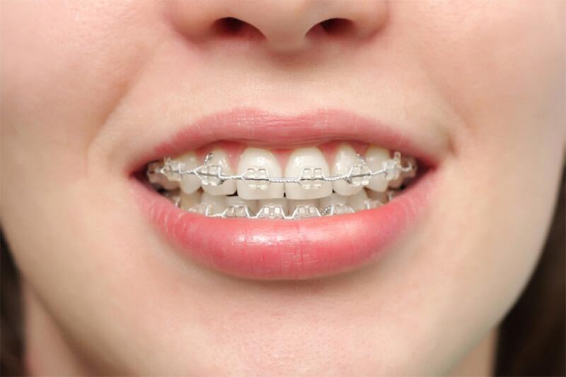 Niềng Răng Hô Có Phải Nhổ Răng Không? – Nha Khoa Quốc Tế Á Châu - ảnh 4