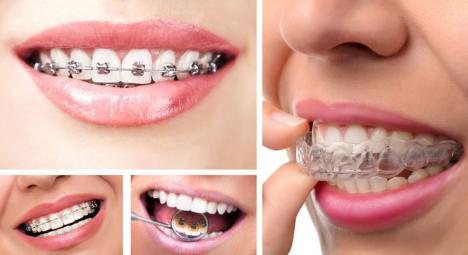 Niềng Răng Hô Có Phải Nhổ Răng Không? – Nha Khoa Quốc Tế Á Châu - ảnh 5