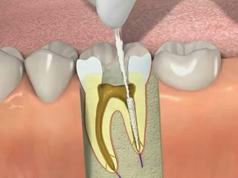 Răng Sứ Hết Hạn – Dấu Hiệu Nhận Biết Và Cách Khắc Phục Hiệu Quả - ảnh 4