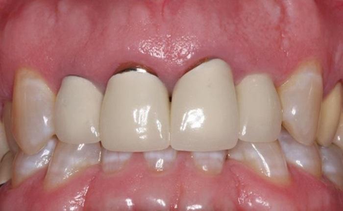 Răng Sứ Hết Hạn – Dấu Hiệu Nhận Biết Và Cách Khắc Phục Hiệu Quả - ảnh 1