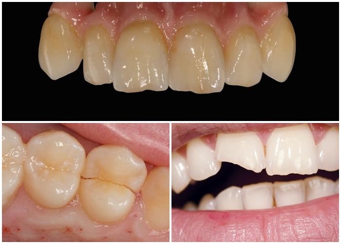Răng Sứ Hết Hạn – Dấu Hiệu Nhận Biết Và Cách Khắc Phục Hiệu Quả - ảnh 10