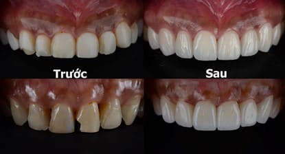 Răng Sứ Hết Hạn – Dấu Hiệu Nhận Biết Và Cách Khắc Phục Hiệu Quả - ảnh 11
