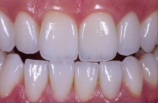Răng Sứ Hết Hạn – Dấu Hiệu Nhận Biết Và Cách Khắc Phục Hiệu Quả - ảnh 5