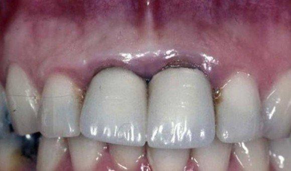 Răng Sứ Hết Hạn – Dấu Hiệu Nhận Biết Và Cách Khắc Phục Hiệu Quả - ảnh 7