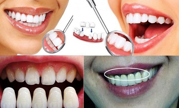 Bọc Răng Sứ Bị Hôi Miệng Đúng Hay Không? – Nha Khoa Quốc Tế Á Châu - ảnh 4