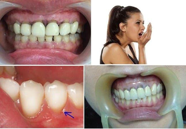 Bọc Răng Sứ Bị Hôi Miệng Đúng Hay Không? – Nha Khoa Quốc Tế Á Châu - ảnh 5