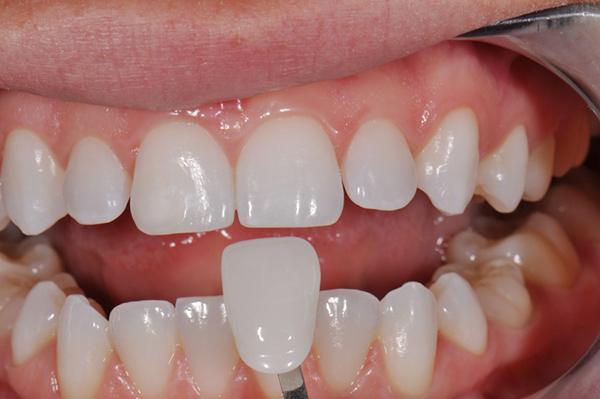 Răng Cửa Vẩu: Nguyên Nhân Và Cách Điều Trị Hiệu Quả - ảnh 5