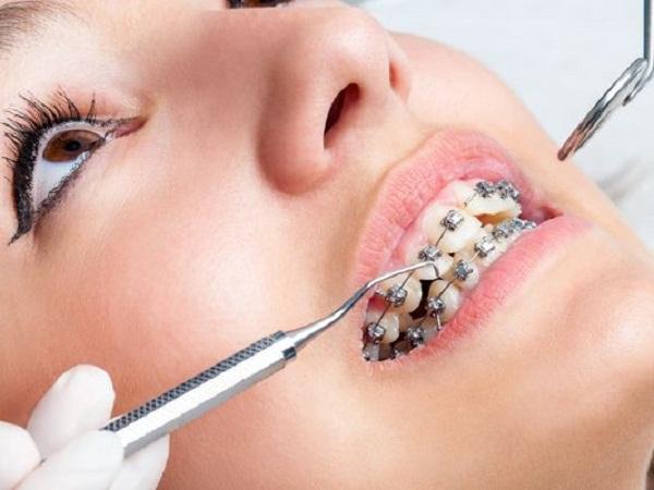 Răng Cửa Vẩu: Nguyên Nhân Và Cách Điều Trị Hiệu Quả - ảnh 7