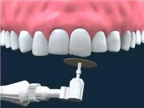 Răng Cửa Vẩu: Nguyên Nhân Và Cách Điều Trị Hiệu Quả - ảnh 4