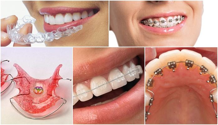 Răng Cửa Vẩu: Nguyên Nhân Và Cách Điều Trị Hiệu Quả - ảnh 6
