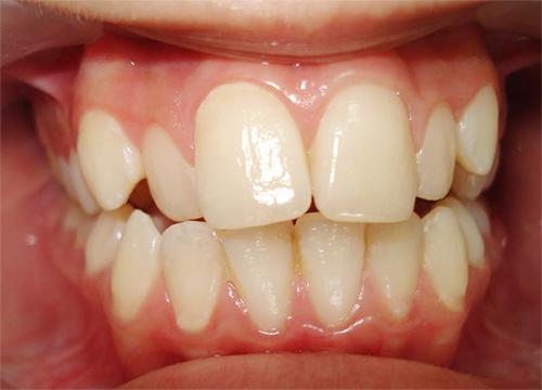 Răng Cửa Vẩu: Nguyên Nhân Và Cách Điều Trị Hiệu Quả - ảnh 1