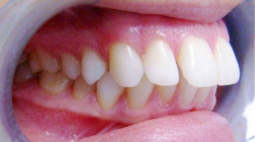 Răng Cửa Vẩu: Nguyên Nhân Và Cách Điều Trị Hiệu Quả - ảnh 3
