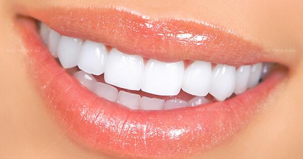 Nên Bọc Bao Nhiêu Răng Sứ Để Sở Hữu Nụ Cười Đẹp Hoàn Hảo - ảnh 3