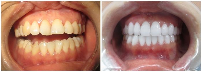 Răng Cửa Mọc Lệch: Nguyên Nhân Và Cách Xử Lý Hiệu Quả Nhất - ảnh 8
