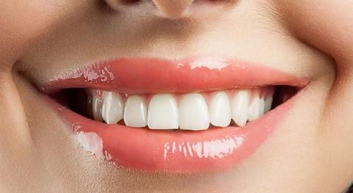 Nên Bọc Bao Nhiêu Răng Sứ Để Sở Hữu Nụ Cười Đẹp Hoàn Hảo - ảnh 7