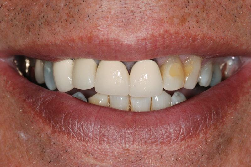 Làm Cầu Răng Sứ Bị Hở Dắt Thức Ăn Phải Làm Sao? - ảnh 1