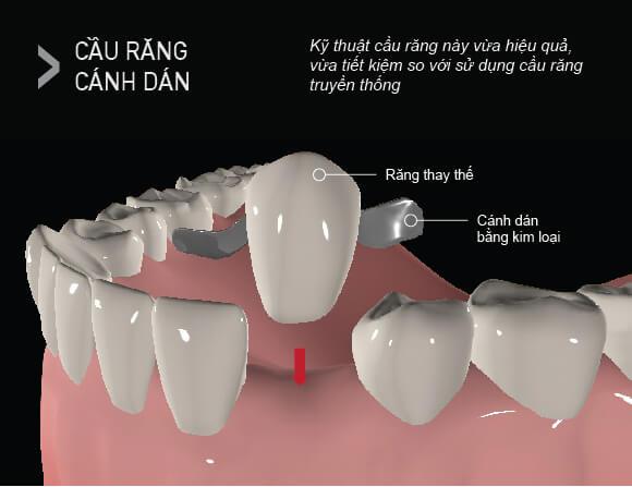 Cầu Răng Sứ Có Tốt Không, Có Bền Không? – Nha Khoa Quốc Tế Á Châu - ảnh 5