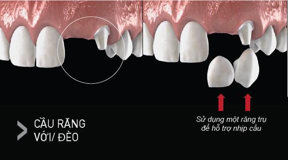 Cầu Răng Sứ Có Tốt Không, Có Bền Không? – Nha Khoa Quốc Tế Á Châu - ảnh 4