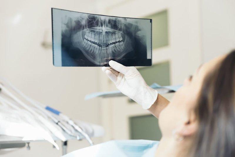 Nên Bọc Bao Nhiêu Răng Sứ Để Sở Hữu Nụ Cười Đẹp Hoàn Hảo - ảnh 8